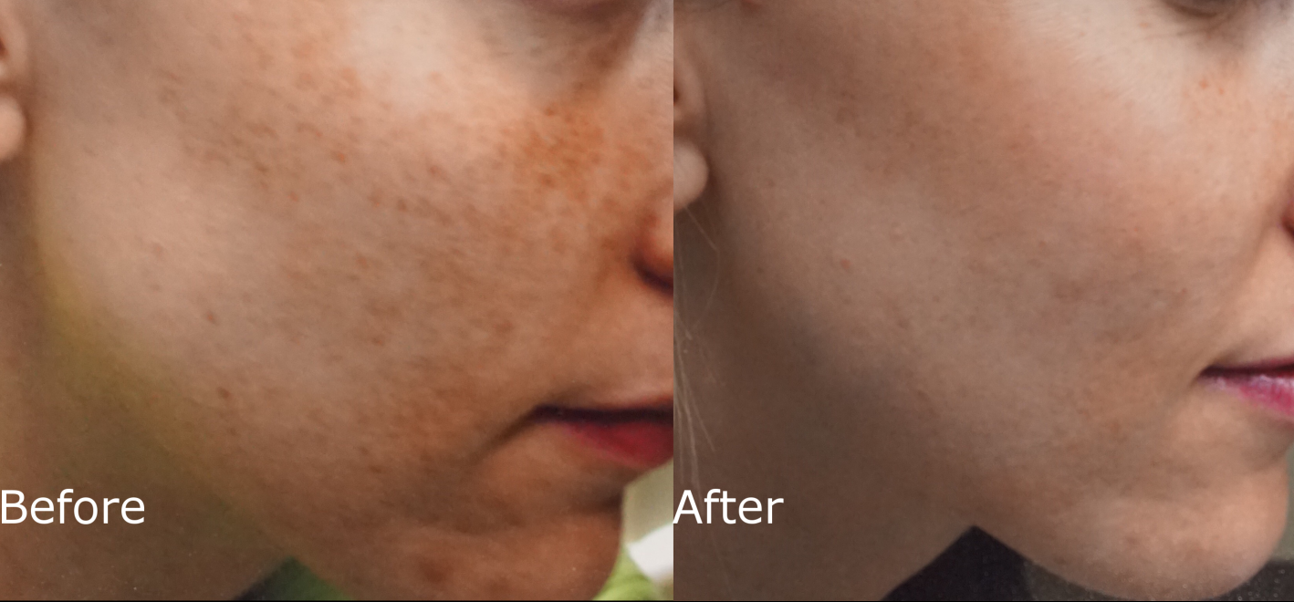 Treat Sun Damage, Rosacea, Acne, Freckles: IPL | Hartford, CT
