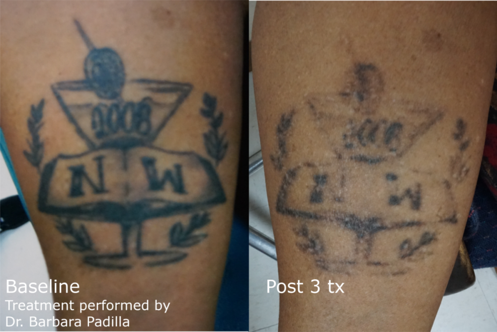 Laser Tattoo Removal | Enlighten™| Latest and Most Effective