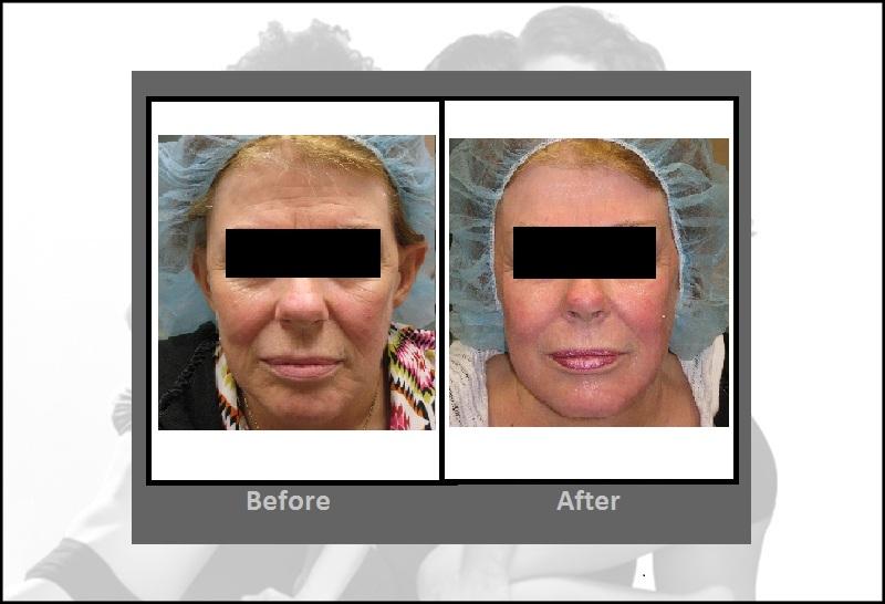 Laser Skin Resurfacing With Pearl Procedure Hartford
