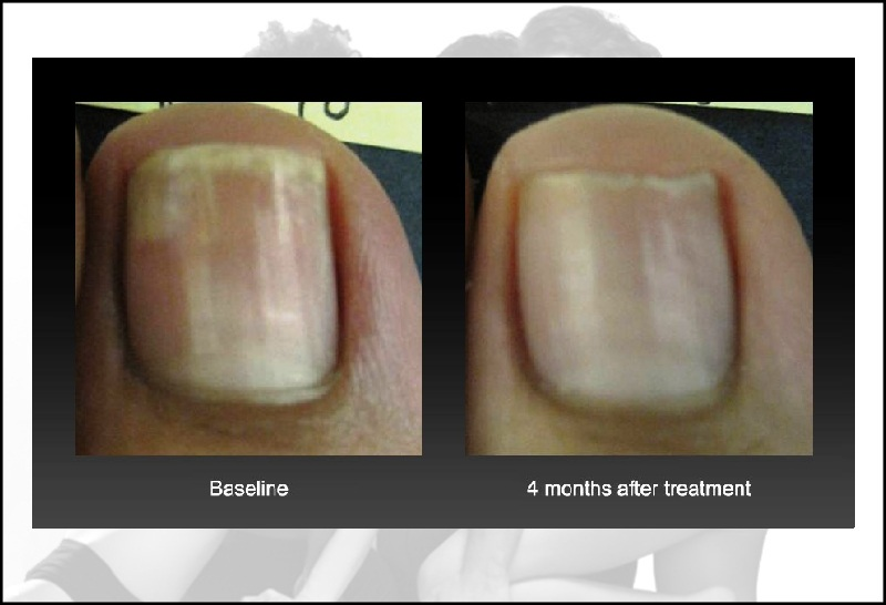 Nail Fungus Treament Genesis Plus Laser Therapy