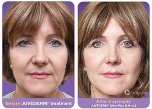 Juvederm Before & After 1